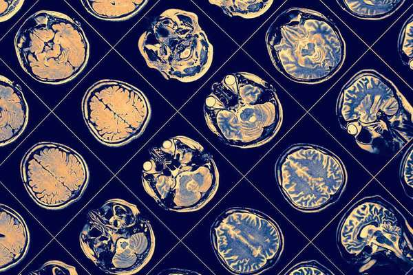 high-school research neuroscience neuroplasticity