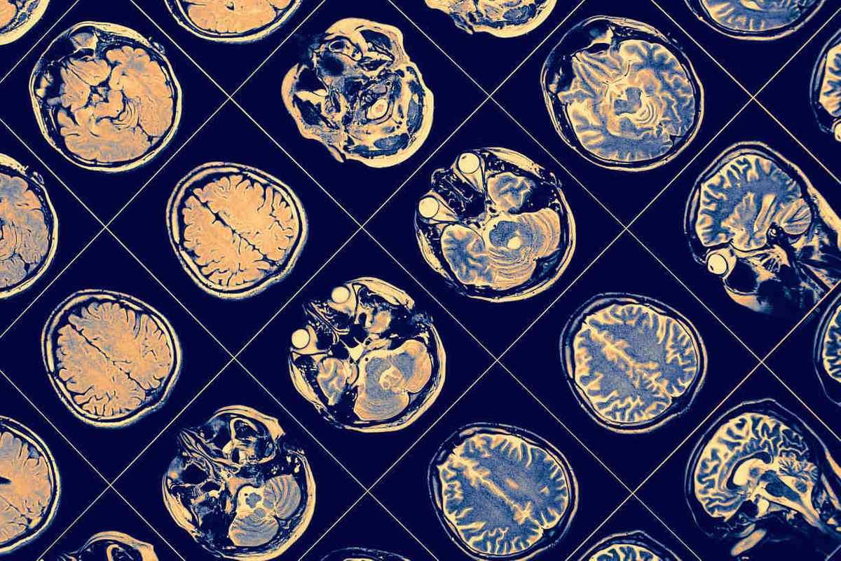 High School Neuroscience Research Opportunities